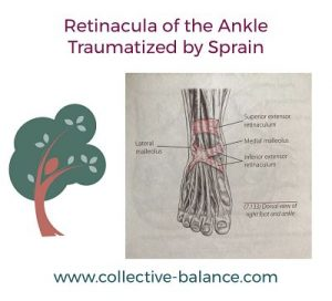 History of Sprained Ankles That Haven't Properly Healed